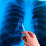 Социальное заболевание: каковы успехи нашей страны в борьбе с туберкулезом?