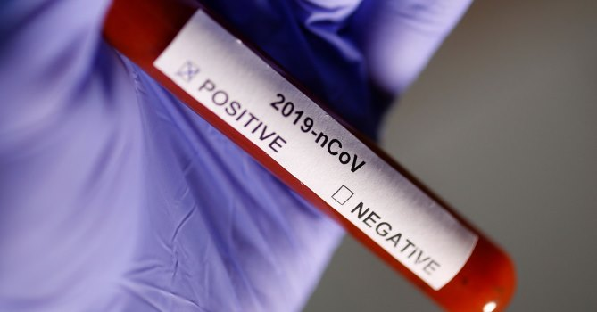 В Армении шесть полицейских заразились коронавирусом