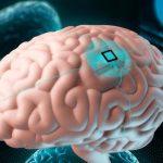 Американцы создали нейропротез, трансформирующий мысли в печатный текст